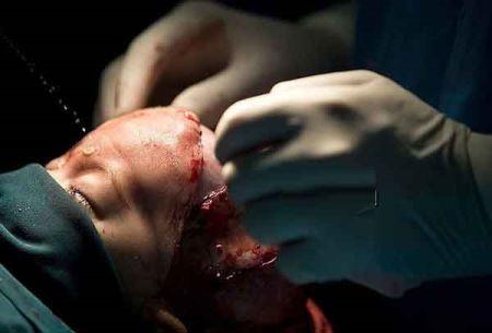 اولین عمل باسازی جمجه این دختر در ایران (عکس 18+)