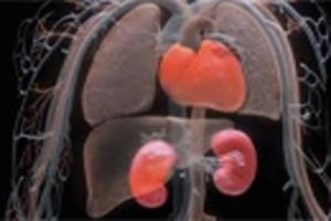 سرطان کلیه و عوامل ایجاد آن