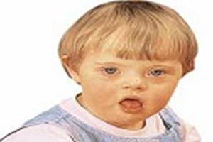 جلوگیری از تولد فرزندان عقب مانده با روش های پیشرفته