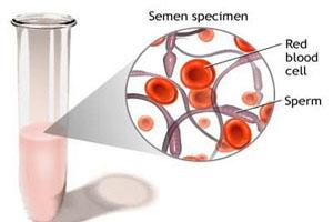 دیدن خون در مایع منی نشانه چیست؟