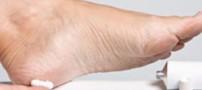 ترک پوست پا و روش های درمان آن