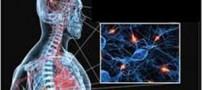علائم، تشخیص و درمان ام اس