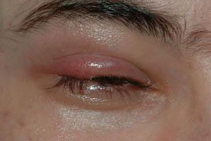 علائم، درمان و پیشگیری از گل مژه 1