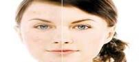 راهکار اساسی برای رفع جوش و لک های صورت