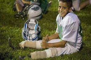 این پسر بدون پا فوتبال بازی می کند (عکس)