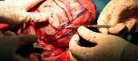 اولین عمل بازسازی جمجه این دختر در ایران (عکس 18+)