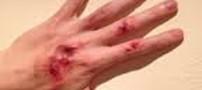 استفاده از پوست ماهی برای بهبود زخم ها