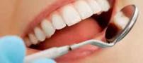 چه داروهایی موجب پوسیدگی دندان می شود