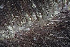 چه چیزی سبب ایجاد شوره سر می شود؟