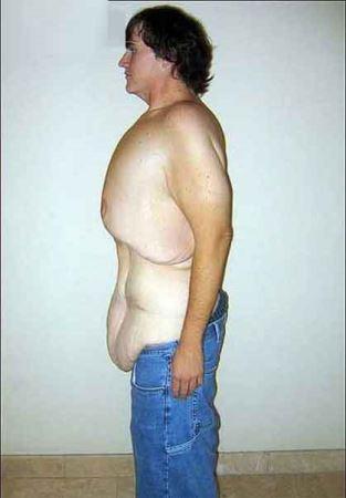 تصاویر دیدنی مردی که 200 کیلو کم کرد