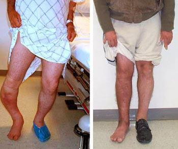 عمل های جراحی افزایش قد