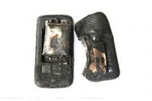 سوختگی شدید یک پسر 5 ساله با شارژ موبایل.