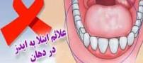 علائم ابتلا به ایدز در دهان!