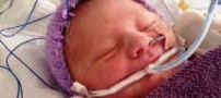 نوزادی که پس از 8 دقیقه مرگ زنده شد (عکس)