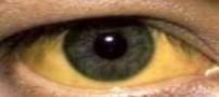 زردی چشم را جدی بگیرید