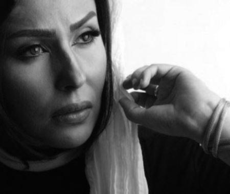 پشیمانی شدید خانم بازیگر از پروتز لب هایش (عکس)