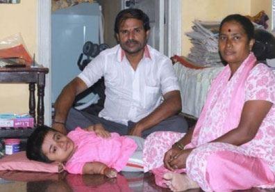دختر 19 ساله در بدن کودک 2 ساله!! (عکس)