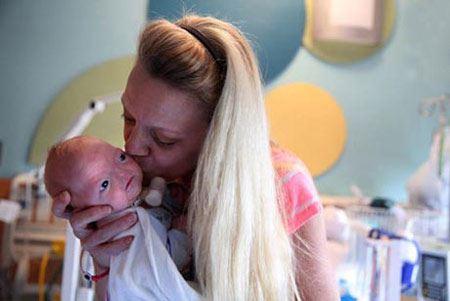 تولد عجیب نوزادی بدون بینی (عکس)