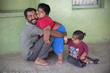 جنجال فروش کلیه پدری برای پرخوری وحشتناک دخترش(عکس)