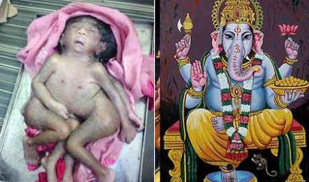 دختری عجیب الخلقه که توسط هندی ها پرستیده می شود (عکس)