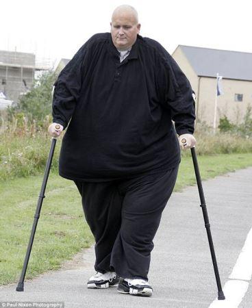 چاق ترین مرد دنیا 300 کیلو کم کرد! (عکس)