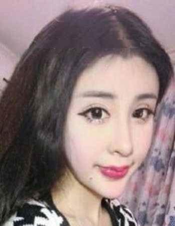 جراحی بحث بر انگیز این دختر 15 ساله (عکس)