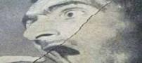 دندانهای مصنوعی مردی را در تهران از دهانش دزدیدند ! عکس