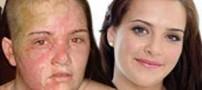 دختری که پس از سوختگی با روغن زیباتر شد (عکس)