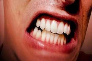 دندان قروچه چه بیماری است؟