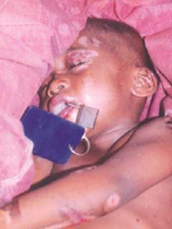 جنجال کودک آزاری با آهن گداخته توسط این مادر (عکس)