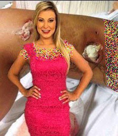 ماجرای عمل زیبایی ناموفق زیباترین دختر برزیل (عکس)