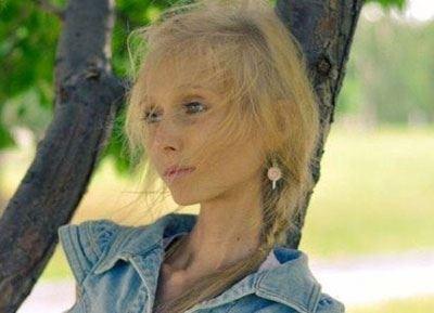 دختری که از اندام و هیکل خود رنج می برد (عکس)