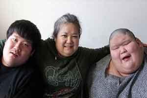 دو قلوهای چاق چینی با ترسناک ترین بیماری مغزی! (عکس)