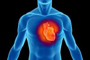 عوامل سکته قلبی چیست؟