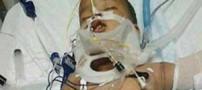 سقوط کودک 1 ساله از ساختمان 11 طبقه (عکس)