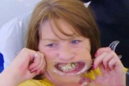 زنی که 10 سال به دندان هایش سوپر چسب می زد ! عکس