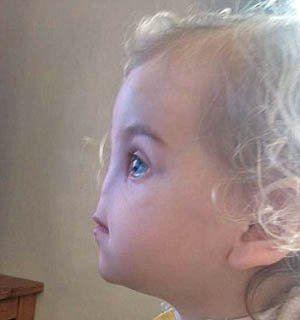 روش جالب پزشکان برای درست کردن بینی این دختر!! (عکس)