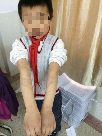 آزار و اذیت وحشتناک این پسر به مدت 3 سال! (عکس)
