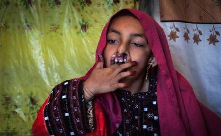 چهره دردناک دختر سیستانی (عکس)