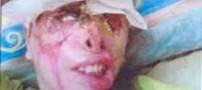 ماجرای اسید پاشی به مردی در کرمانشاه