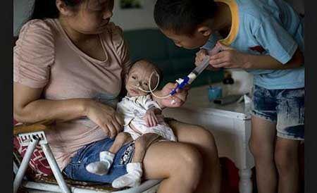 پوست و استخوان شدن این کودک بخاطر  (عکس 18+)