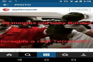 (16+) نوزادی که زنده زنده سوزانده شد (عکس)