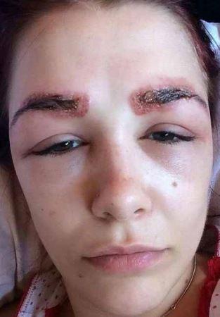 دختر جوانی که قربانی عمل زیبایی شد (عکس)