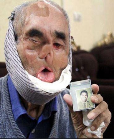محمد زاده جانبازی با صورتی عجیب (عکس)