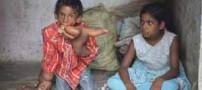 کودکی با دستانی عجیب و آینده ای نامعلوم (عکس)