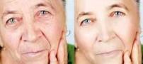 بهترین تکنیک های مراقبت از پوست