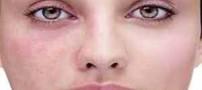 دلیل اصلی ایجاد کک و مک در صورت و بدن
