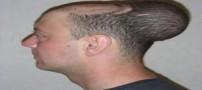 تومور عجیب و غیرعادی در سر این مرد (عکس)