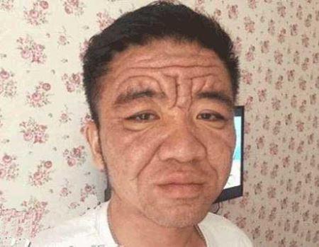 مرد عجیبی که پزشکان جهان قادر به درمان او نیستند (عکس)