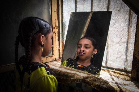 دختر عجیبی که دندانهایش در دماغش است ( 16+ عکس)
